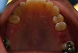 Complex Crowns - before