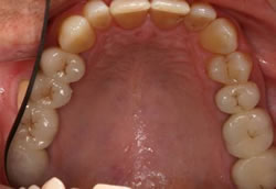 Complex Crowns - After