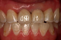 Implant Crown - After