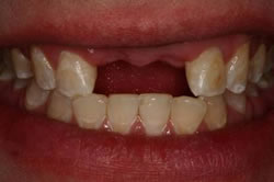 Implant Crown - Before