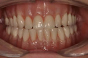 denture implant - after