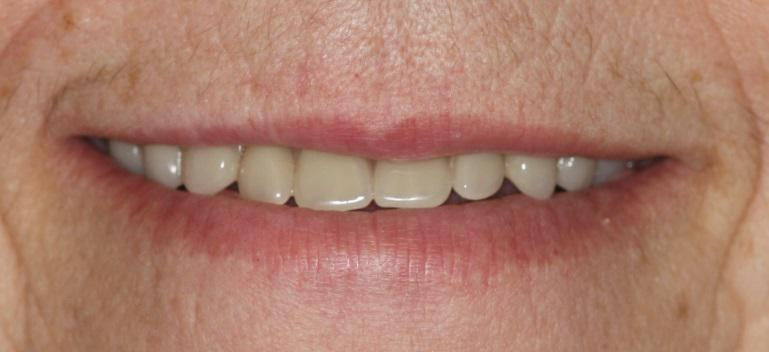Blog Reasonable Expections New Dentures
