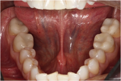 Cerec Crowns Lower - After