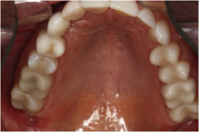 Cerec Crowns Upper - After