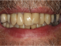 Cerec Crowns - After