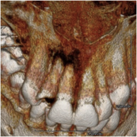 Conebeam CT of Tooth Abscess needing Root Canal