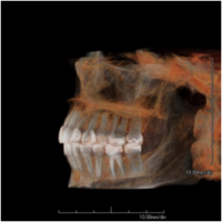Conebeam CT of the Jaw