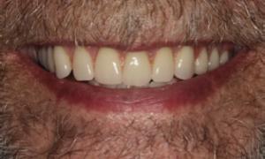 Denture1 300×180