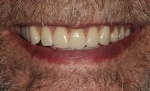 Dentures Dover Dentist