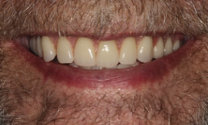 Cosmetic Dentistry | Why Do I Need A Reline When I Just Got My Dentures A Year Ago?