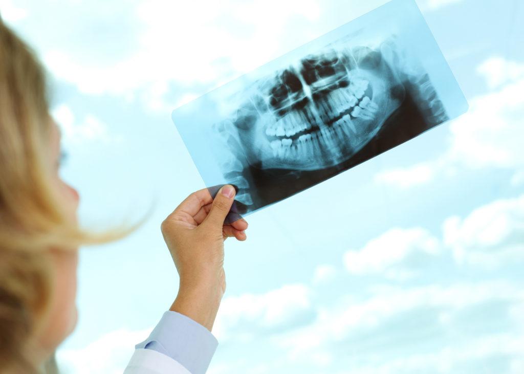 gum disease Dover, OH dentist