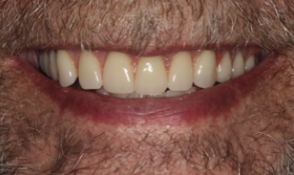 dentures Dover, OH dentist
