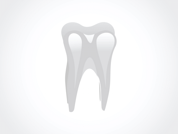 Improper Restorations Common Reason For Root Canal Problems